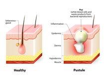 Pele e pústulas saudáveis ilustração stock
