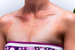 Pele fêmea queimada com alergia do sol fotos de stock royalty free