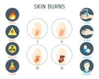 A pele humana queima o cartaz do cartão de Infographic Vetor ilustração royalty free