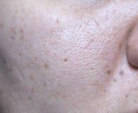 A pele problemática da mulher, as cicatrizes da acne, pele e poro oleoso e b imagens de stock royalty free