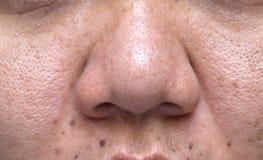 A pele problemática da mulher, as cicatrizes da acne, pele e poro oleoso, pontos escuros e pústula e whitehead na cara imagem de stock