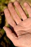 Pele rachada na mão de um trabalhador Foto de Stock