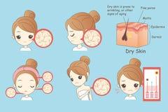 Pele seca da cara da mulher dos desenhos animados ilustração stock