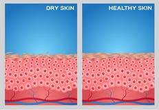 Pele seca, textura saudável da pele, ilustração do vetor