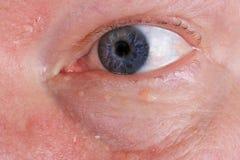 Pelle asciutta irritata ed occhio cieco sul fronte di un uomo anziano anziano fotografie stock libere da diritti