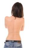 Pelle di problema sulla parte posteriore della femmina Fotografia Stock