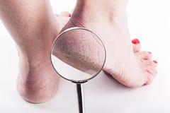 Pelle disidratata alle calcagna dei piedi femminili Fotografia Stock