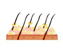 Pelle e capelli di Seborrhea Dermatite seborrheic della forfora Disfunzione delle ghiandole sebacee Malattia della pelle infiamma royalty illustrazione gratis
