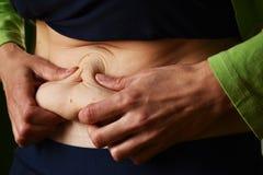 Pelle in eccesso sullo stomaco di una donna dopo la consegna immagine stock libera da diritti