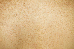 Pelle posteriore Freckled Fotografia Stock