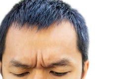 Pelle sulla fronte di un uomo immagini stock