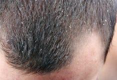 Pellicules dans les cheveux photo libre de droits