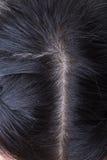 Pelo negro con la caspa en la cabeza Imagenes de archivo