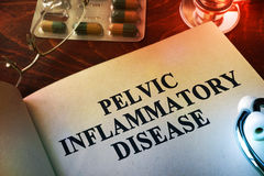 Pelvic inflammatory disease PID. Stock Photo