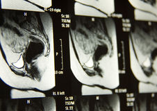 Pelvic MRI Stock Photography