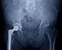 Pelvic x-ray Stock Photography