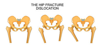 Pelvis, hip fracture. hip dislocation royalty free illustration