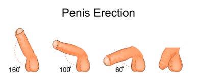 penis aufrichtung urology Stockfoto