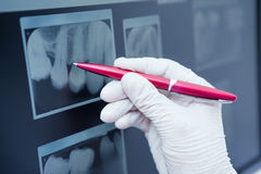 Penna di tenuta inguantata della mano ai raggi x dei denti Immagine Stock