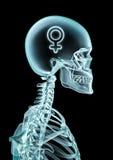 Pensamiento de la hembra de la radiografía Imagen de archivo