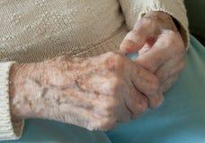 Pensionärhänder med reumatoid artrit Fotografering för Bildbyråer