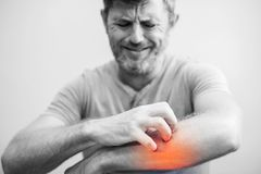 People scratch the itch with hand, Elbow, itching, Healthcare An royalty free stock photo