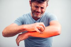 People scratch the itch with hand, Elbow, itching, Healthcare An stock photos