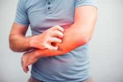 People scratch the itch with hand, Elbow, itching, Healthcare An. D Medicine, Men with skin problem concept stock photography