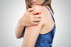 People scratch the itch with hand. Upper arm, itching, Healthcare And Medicine, Beautiful girl woman with skin problem concept royalty free stock photo