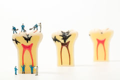 People to clean tooth model ,miniature Royalty Free Stock Image