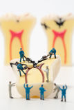 People to clean tooth model ,miniature Royalty Free Stock Images