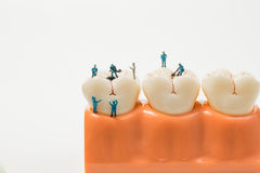 People to clean tooth model ,miniature Royalty Free Stock Photography