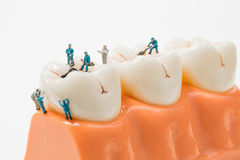 People to clean tooth model ,miniature Stock Images