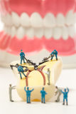 People to clean tooth model ,miniature Royalty Free Stock Photos