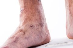 People with varicose veins of the lower extremities and venous t Stock Image