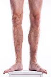 People with varicose veins of the lower extremities and venous t Royalty Free Stock Images