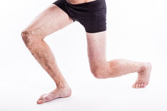 People with varicose veins of the lower extremities and venous t Stock Photography