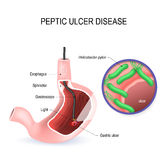 Peptic ulcer disease PUD, stomach ulcer or gastric ulcer. Human Stomach with endoscope and close-up view of bacterium Helicobacter pylori which causes ulcers Stock Photo