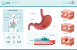 Peptic ulcer and helicobacter pylori infographic. With symptoms and causes, stomach cross section diagram, medical illustration Stock Photo