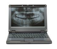 Pequeña computadora portátil con el cuadro dental de la quijada Fotos de archivo