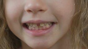 Pequeño niño que sonríe y que muestra gomas y los dientes con las caries dentales, puntos amarillos almacen de metraje de vídeo