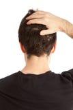 Perda de cabelo Imagens de Stock Royalty Free