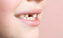 Perdió un diente Imagen de archivo libre de regalías