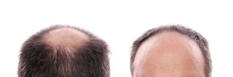Perdita di capelli fotografia stock libera da diritti