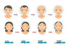 Perdita di capelli illustrazione vettoriale