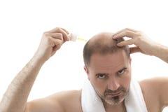 Perdita di capelli di calvizile di alopecia dell'uomo isolata Fotografie Stock Libere da Diritti