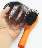 Perdita di capelli in donne immagine stock