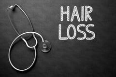 Perdita di capelli scritta a mano sulla lavagna illustrazione 3D Fotografie Stock