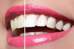 Perfeccione la sonrisa antes y después del blanqueo Dientes del cuidado dental y el blanquear Imagen de archivo