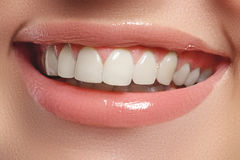 Perfect smile. Beautiful natural full lips and white teeth. Teeth whitening. Stock Image
